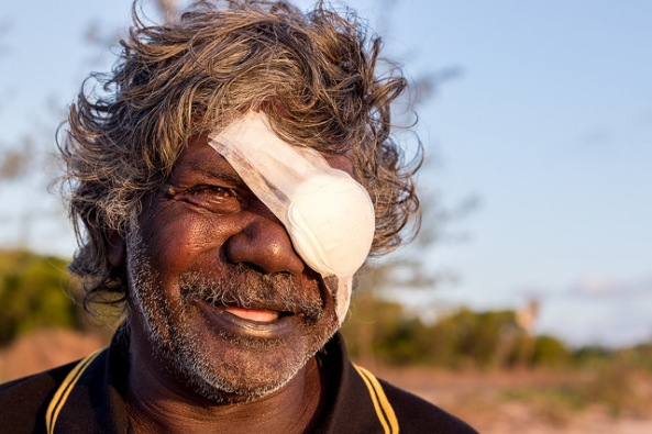 Aboriginal artist Peter Datjin with eye patch in outdoor setting