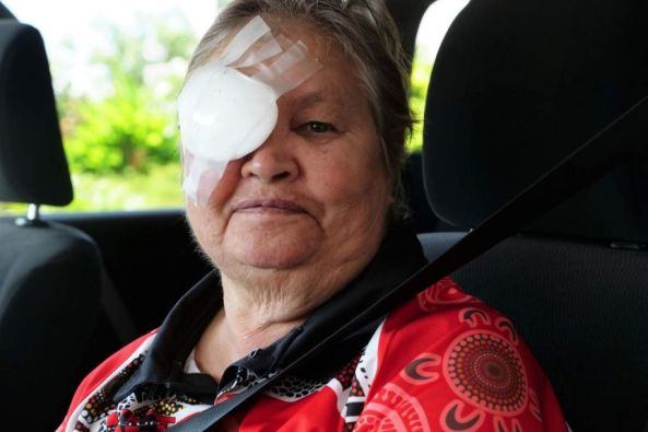 image of Florence Brown with eye patch sitting in passenger side of a car with red Aboriginal dot patterned shirt