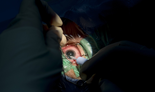 close up of doctor's gloved hands conducting eye surgery