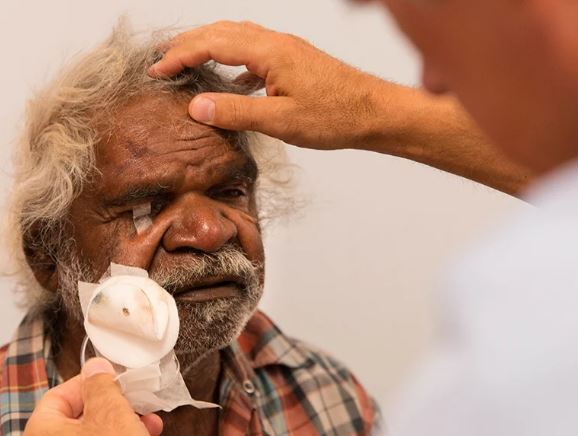 health professional removing eye bandage from elderly Aboriginal man